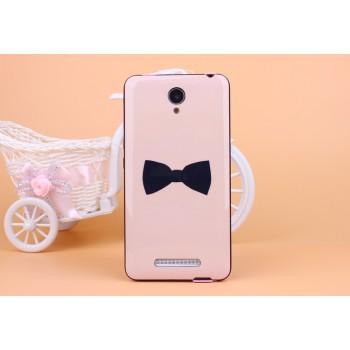 Двухкомпонентный чехол с силиконовой накладкой и поликарбонатным бампером с принтом для Xiaomi RedMi Note 2