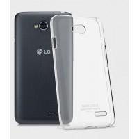 Пластиковый транспарентный олеофобный премиум чехол для LG L70